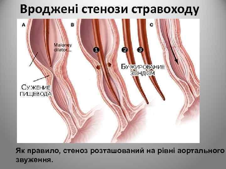 Вроджені стенози стравоходу Як правило, стеноз розташований на рівні аортального звуження.