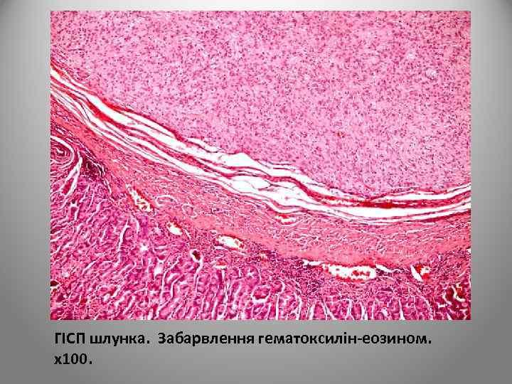 ГІСП шлунка. Забарвлення гематоксилін-еозином. х100.