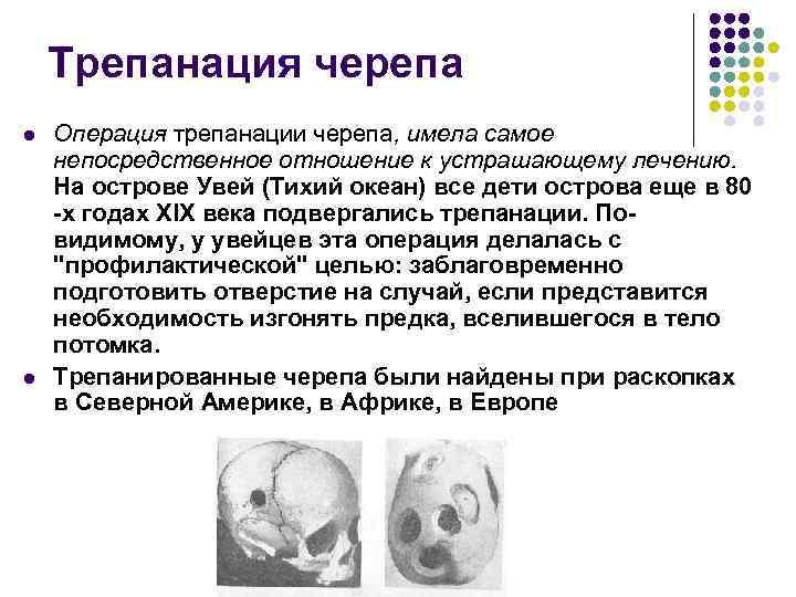 Трепанация черепа l l Операция трепанации черепа, имела самое непосредственное отношение к устрашающему лечению.