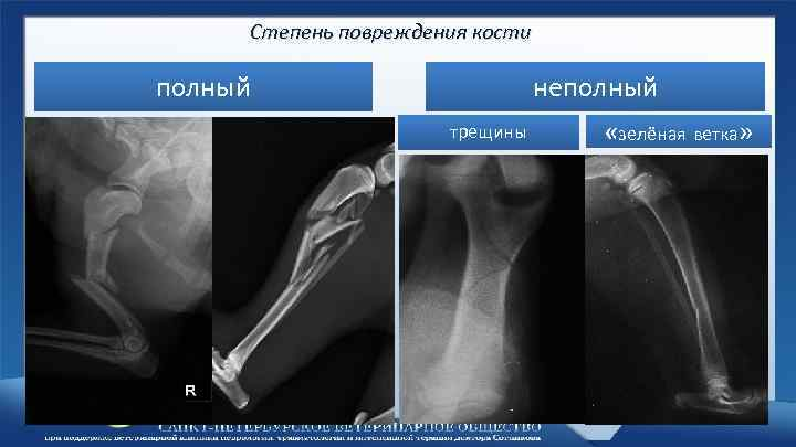 Степень повреждения кости полный неполный трещины «зелёная ветка»