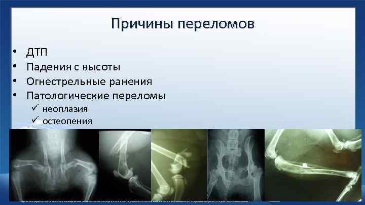 Причины переломов • • ДТП Падения с высоты Огнестрельные ранения Патологические переломы ü неоплазия