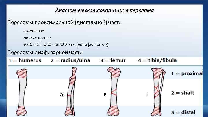Анатомическая локализация перелома Переломы проксимальной (дистальной) части суставные эпифизарные в области ростковой зоны (метафизарные)