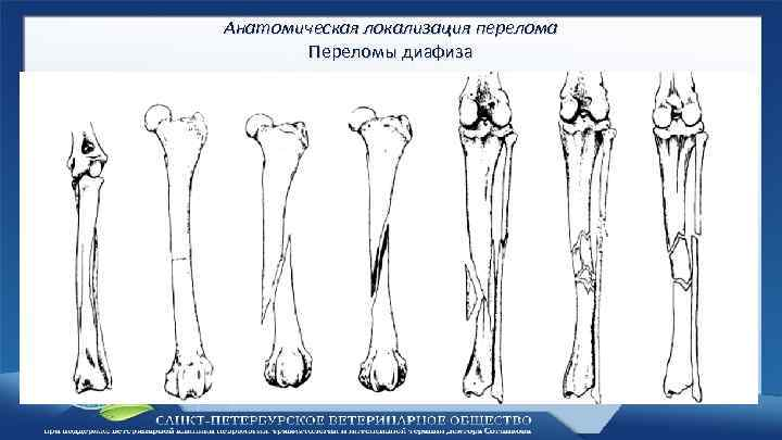 Анатомическая локализация перелома Переломы диафиза