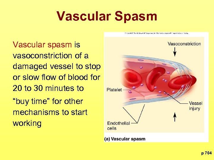 Vascular Spasm Vascular spasm is vasoconstriction of a damaged vessel to stop or slow