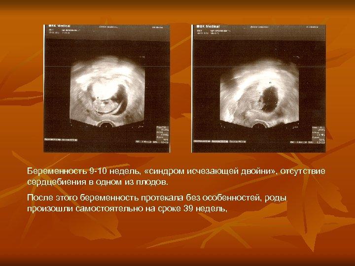 Беременность 9 -10 недель, «синдром исчезающей двойни» , отсутствие сердцебиения в одном из плодов.
