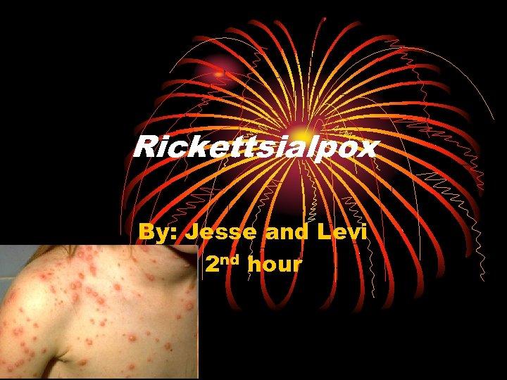 Rickettsialpox By: Jesse and Levi 2 nd hour