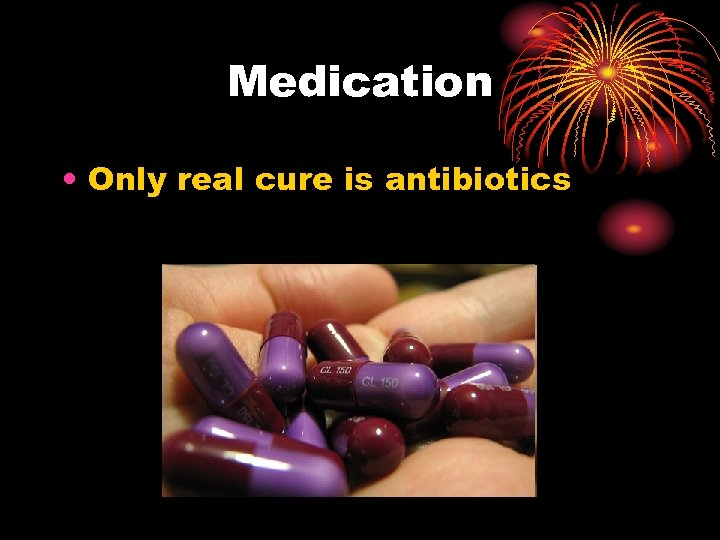 Medication • Only real cure is antibiotics