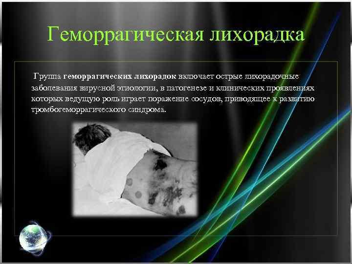 Геморрагическая лихорадка Группа геморрагических лихорадок включает острые лихорадочные заболевания вирусной этиологии, в патогенезе и