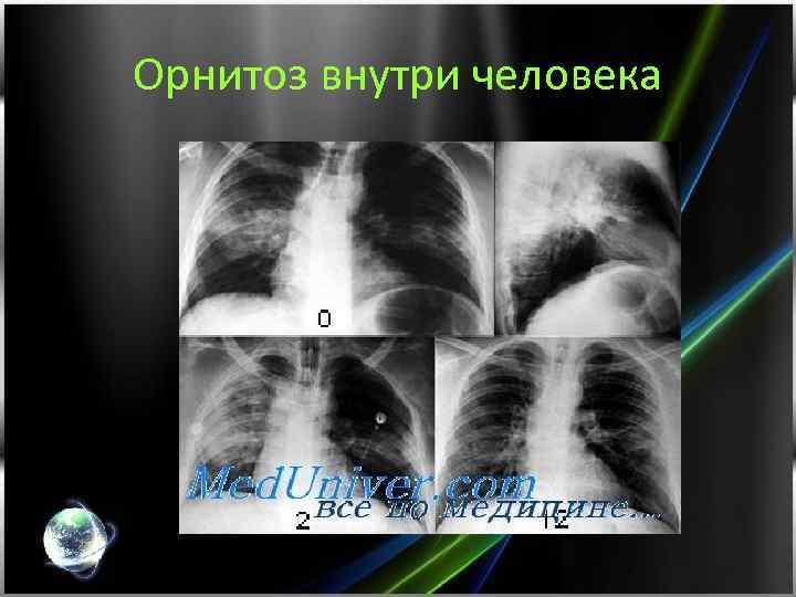 Орнитоз внутри человека