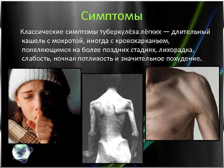 Симптомы Классические симптомы туберкулёза лёгких — длительный кашель с мокротой, иногда с кровохарканьем, появляющимся