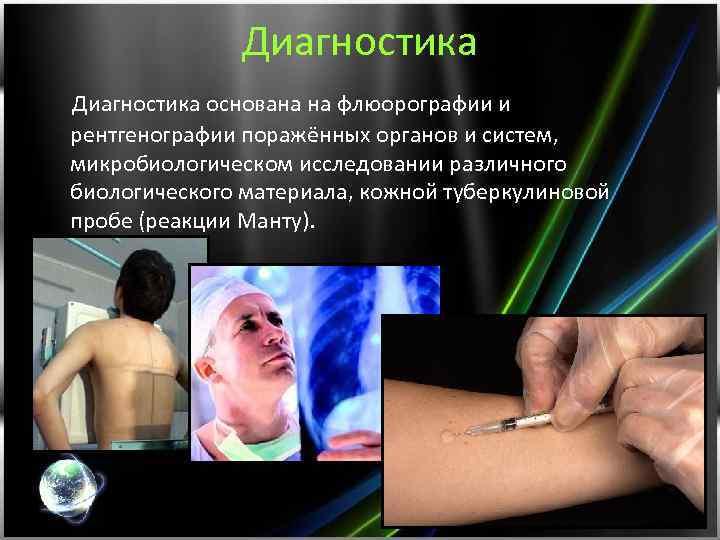 Диагностика основана на флюорографии и рентгенографии поражённых органов и систем, микробиологическом исследовании различного биологического