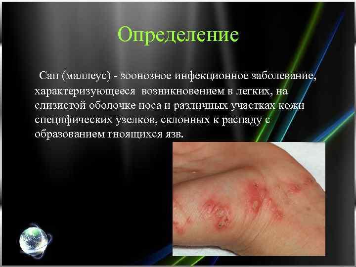 Определение Сап (маллеус) - зоонозное инфекционное заболевание, характеризующееся возникновением в легких, на слизистой оболочке