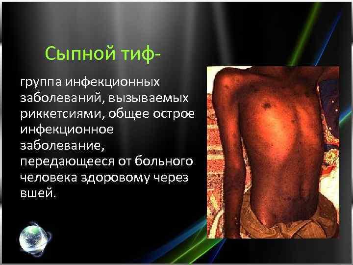 Сыпной тифгруппа инфекционных заболеваний, вызываемых риккетсиями, общее острое инфекционное заболевание, передающееся от больного человека