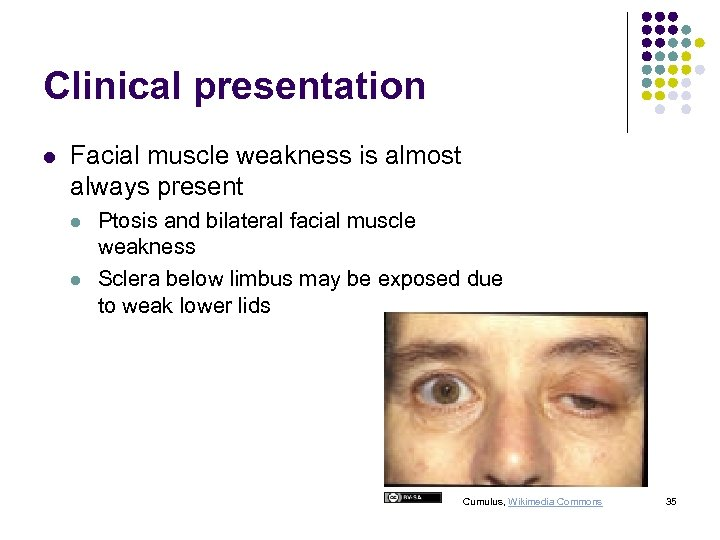 Clinical presentation l Facial muscle weakness is almost always present l l Ptosis and