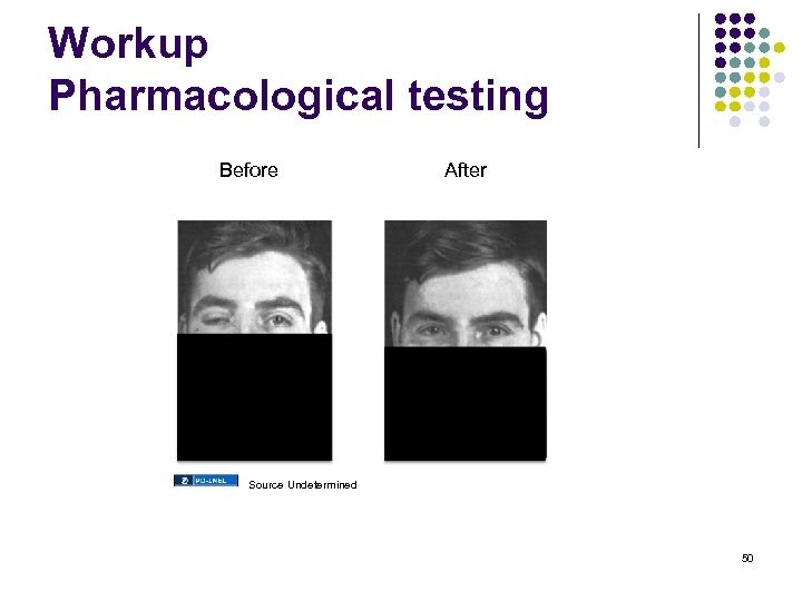 Workup Pharmacological testing Before After Source Undetermined 50