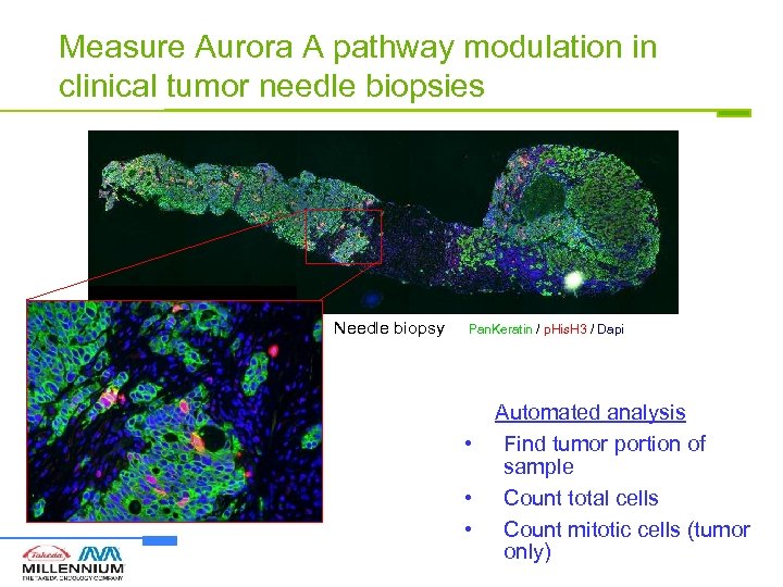Measure Aurora A pathway modulation in clinical tumor needle biopsies Needle biopsy Pan. Keratin