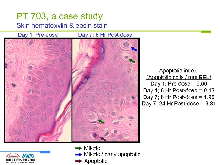 PT 703, a case study Skin hematoxylin & eosin stain Day 1; Pre-dose Day