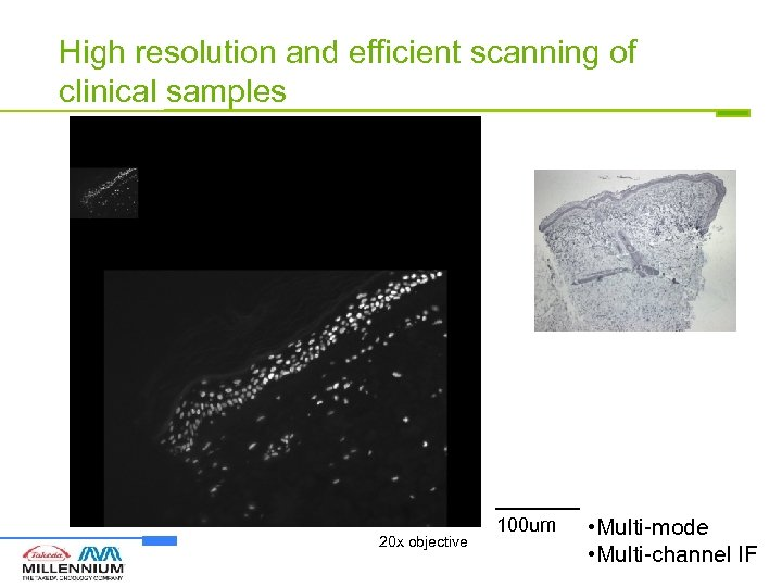 High resolution and efficient scanning of clinical samples 20 x objective 100 um •