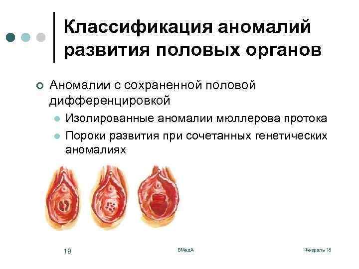 Хламидиоз у женщин, хламидии: симптомы, диагностика и лечение в Пятигорске
