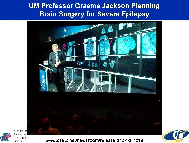 UM Professor Graeme Jackson Planning Brain Surgery for Severe Epilepsy www. calit 2. net/newsroom/release.