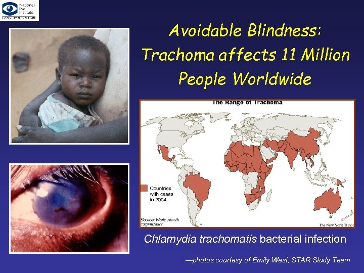 Avoidable Blindness: Trachoma affects 11 Million People Worldwide Chlamydia trachomatis bacterial infection —photos courtesy