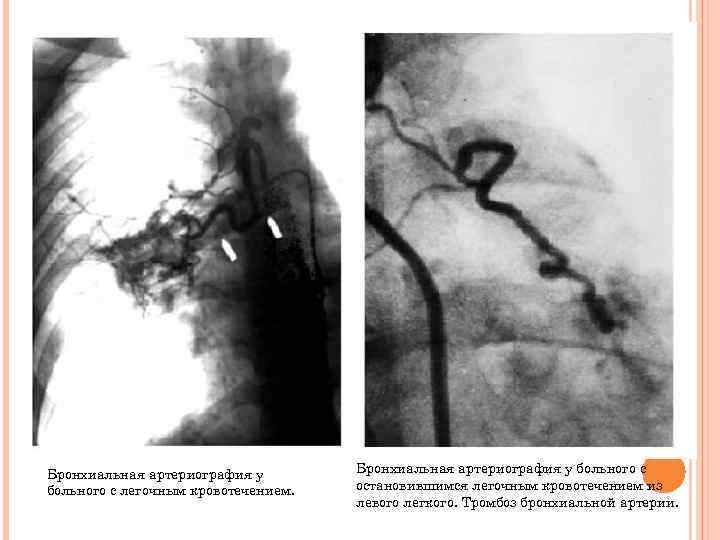 Бронхиальная артериография у больного с легочным кровотечением. Бронхиальная артериография у больного с остановившимся легочным