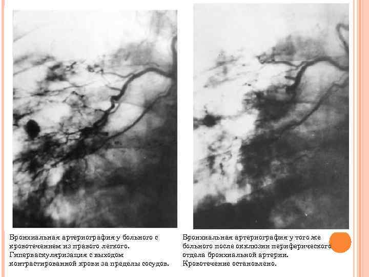 Бронхиальная артериография у больного с кровотечением из правого легкого. Гиперваскуляризация с выходом контрастированной крови