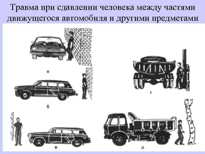 Травма при сдавлении человека между частями движущегося автомобиля и другими предметами