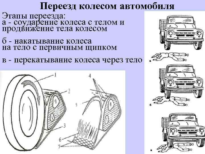 Переезд колесом автомобиля Этапы переезда: а - соударение колеса с телом и продвижение тела