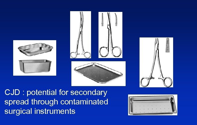 CJD : potential for secondary spread through contaminated surgical instruments