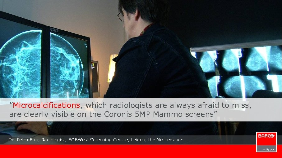 """Microcalcifications, which radiologists are always afraid to miss, are clearly visible on the Coronis"