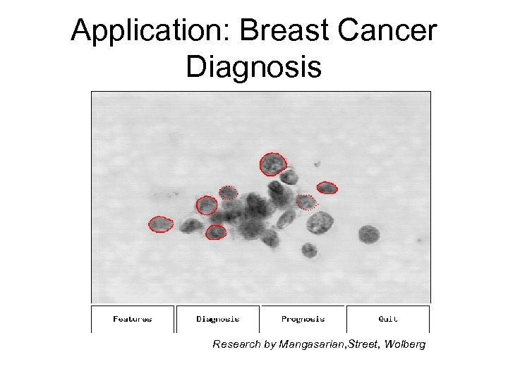 Application: Breast Cancer Diagnosis Research by Mangasarian, Street, Wolberg