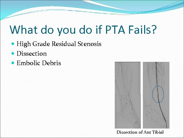 What do you do if PTA Fails? High Grade Residual Stenosis Dissection Embolic Debris