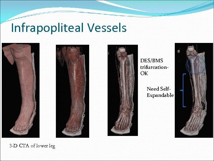 Infrapopliteal Vessels DES/BMS trifurcation. OK Need Self. Expandable 3 -D CTA of lower leg