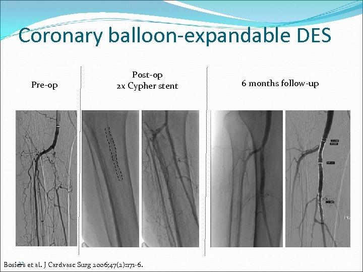 Coronary balloon-expandable DES Pre-op Post-op 2 x Cypher stent 22 Bosiers et al. J