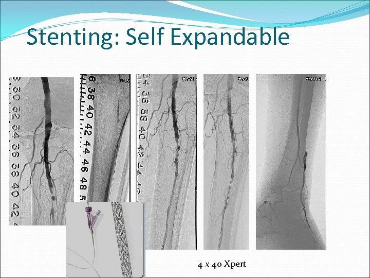 Stenting: Self Expandable 4 x 40 Xpert