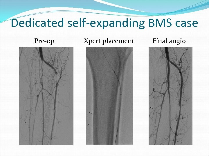 Dedicated self-expanding BMS case Pre-op Xpert placement Final angio