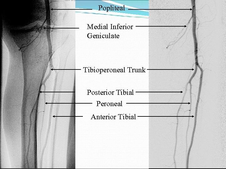 Popliteal Medial Inferior Geniculate Tibioperoneal Trunk Posterior Tibial Peroneal Anterior Tibial