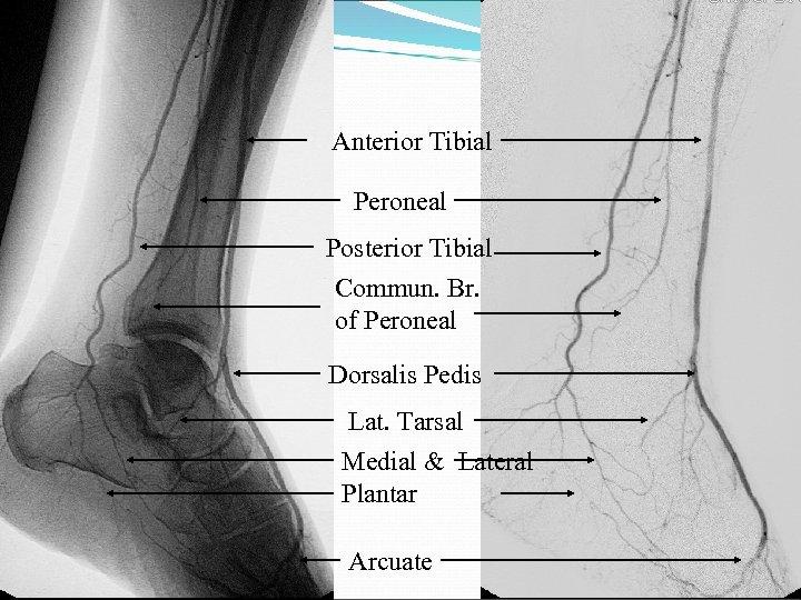 Anterior Tibial Peroneal Posterior Tibial Commun. Br. of Peroneal Dorsalis Pedis Lat. Tarsal Medial