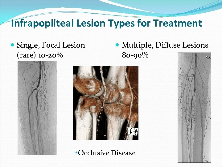 Infrapopliteal Lesion Types for Treatment Single, Focal Lesion (rare) 10 -20% Multiple, Diffuse Lesions