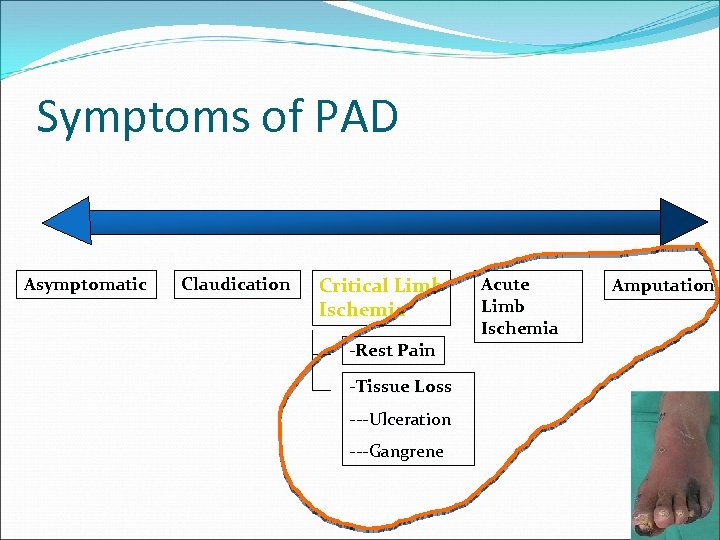 Symptoms of PAD Asymptomatic Claudication Critical Limb Ischemia -Rest Pain -Tissue Loss ---Ulceration ---Gangrene