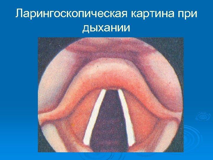 Ларингоскопическая картина при дыхании