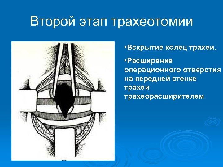 Второй этап трахеотомии • Вскрытие колец трахеи. • Расширение операционного отверстия на передней стенке