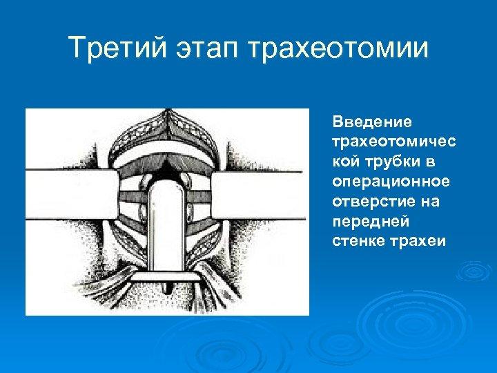 Третий этап трахеотомии Введение трахеотомичес кой трубки в операционное отверстие на передней стенке трахеи