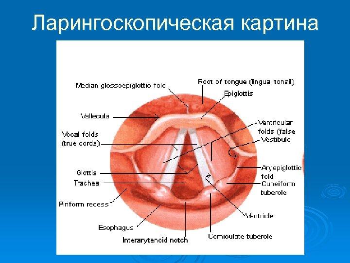 Ларингоскопическая картина