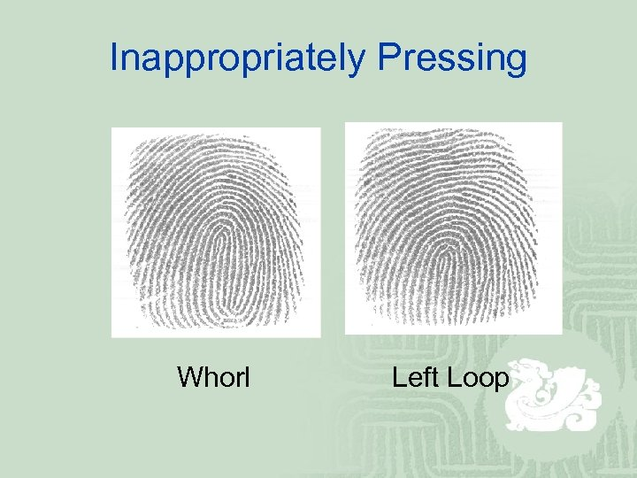 Inappropriately Pressing Whorl Left Loop