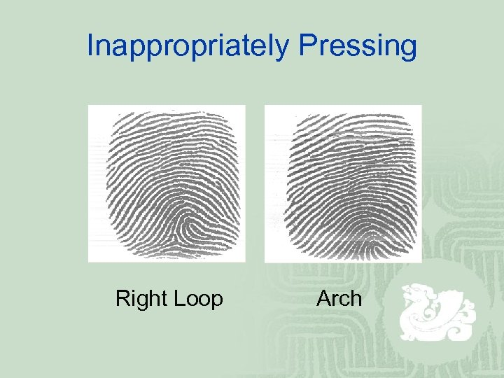 Inappropriately Pressing Right Loop Arch