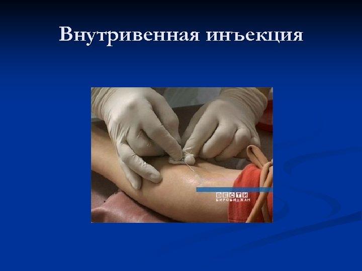 Внутривенная инъекция
