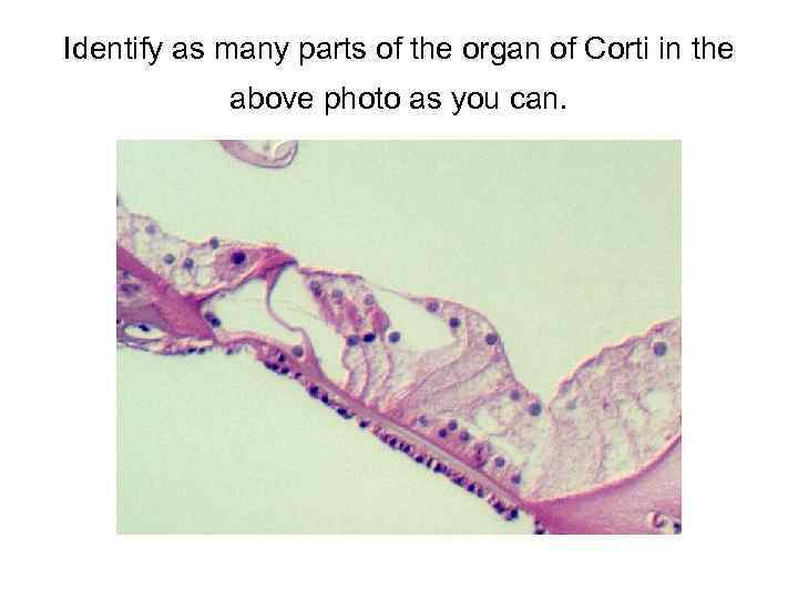 Identify as many parts of the organ of Corti in the above photo as