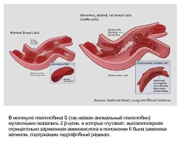 В молекуле гемоглобина S (так назван аномальный гемоглобин) мутантными оказались 2 β-цепи, в которых